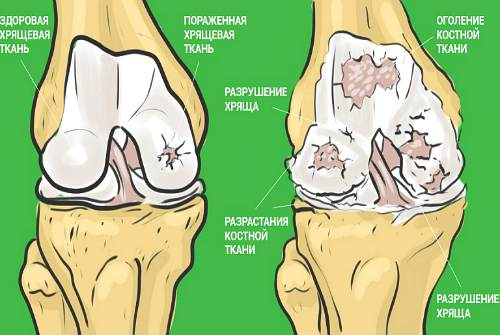 повреждение сустава