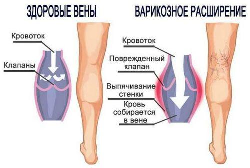 изменение ног