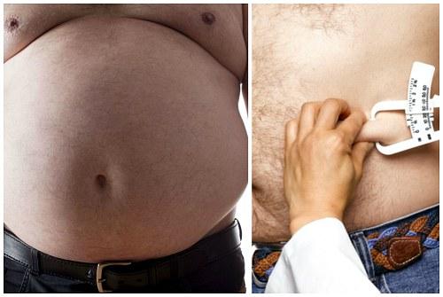 проблемы с гормонами при ожирении