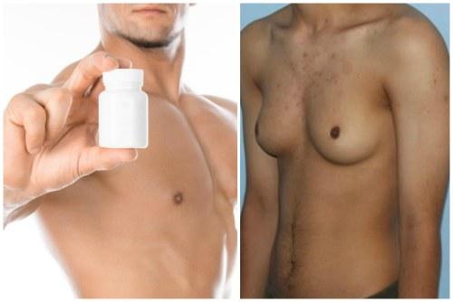 гинекомастия от стероидов