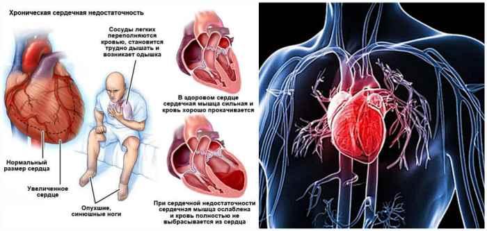 Признаки сердечной недостаточности